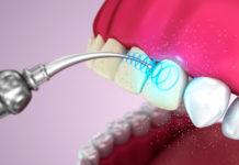 Профилактическая чистка зубов