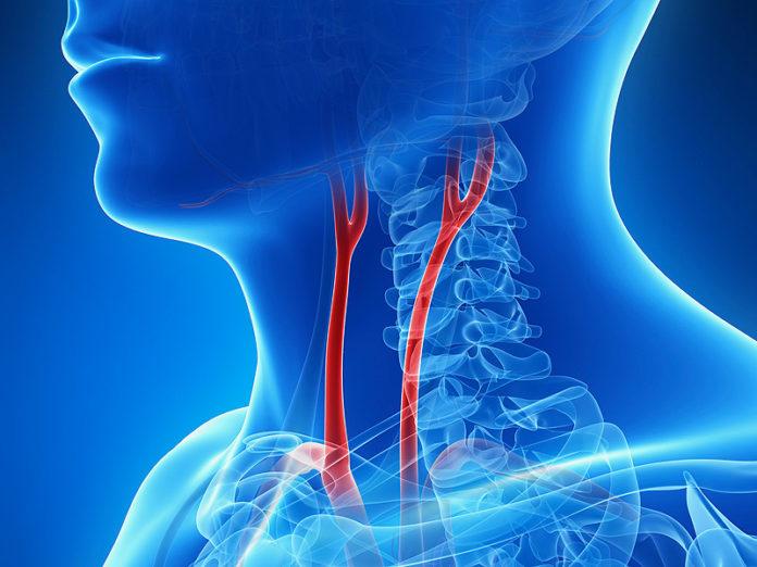 Как лечить стеноз сонной артерии?