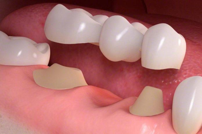 Зубные коронки – лучший вариант для протезирования